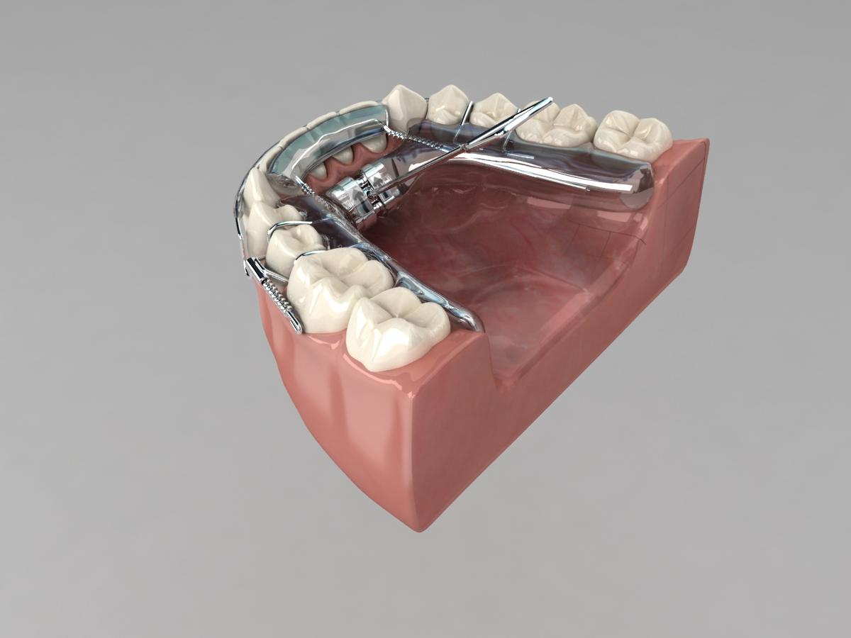 kosmetiske tandbehandlinger - tandbøjle